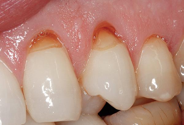 Mòn men răng cụ thể mòn cổ chân răng