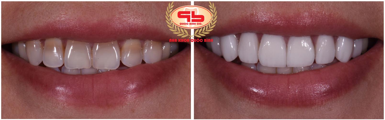 Phục hồi tính thẩm mỹ cho tình trạng men răng hư hại