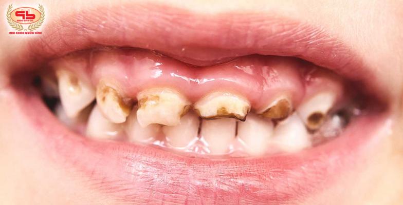 Sâu răng sữa ở trẻ em có đáng lo lắng?