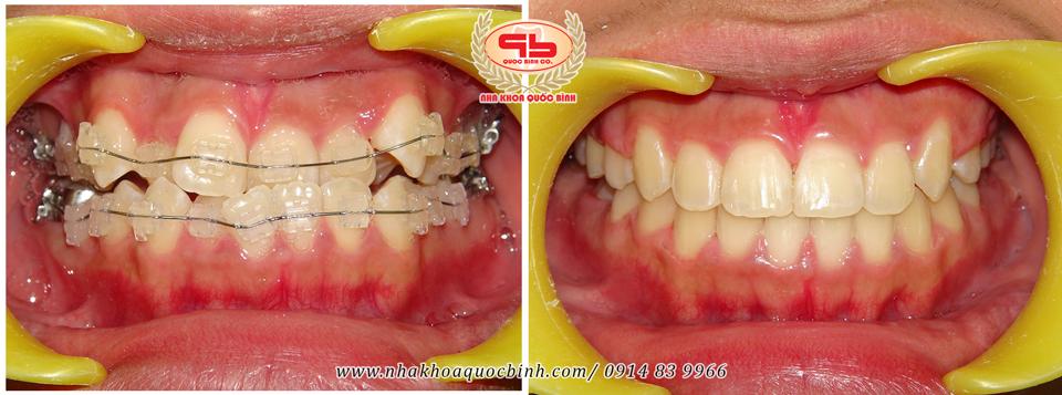 Niềng răng móm do răng mọc sai lệch cho kết quả khả quan