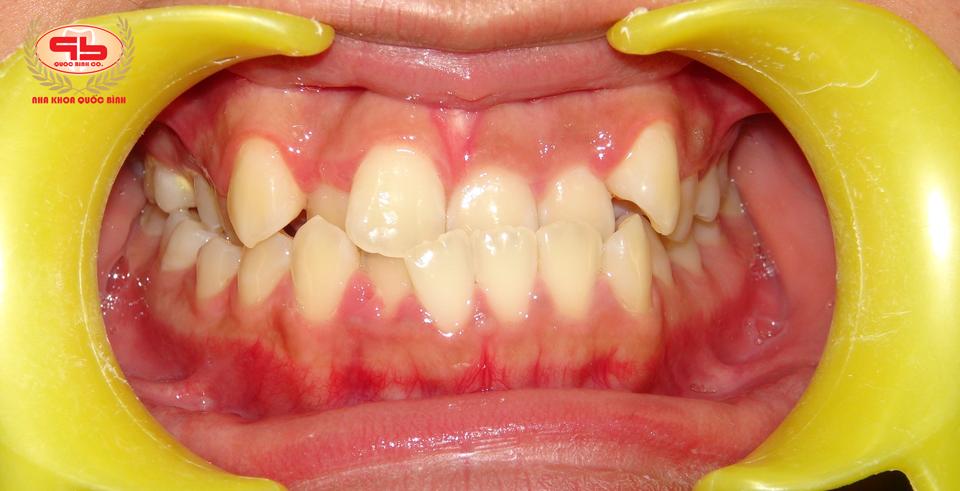 Khi bạn gặp phải tình trạng răng móm phải làm sao?