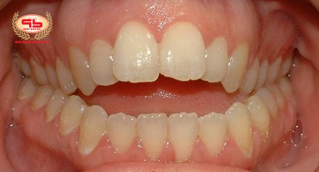 """Ngậm ngón cái là nguyên nhân gần gây ra vấn đề răng miệng """"cắn hở"""" ở trẻ em"""