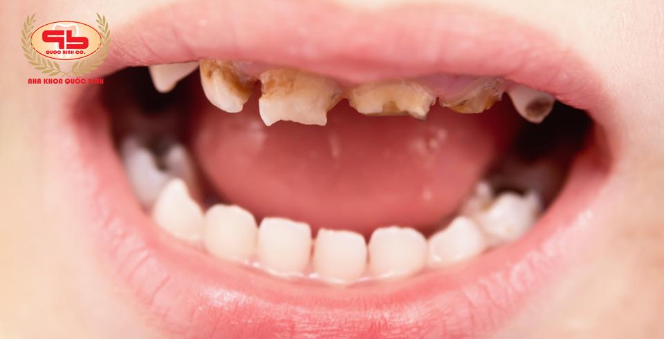Trẻ bị sún răng sớm phải làm sao?