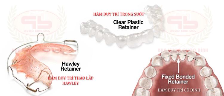 Các loại hàm duy trì sau niềng răng giúp cố định răng không bị xô lệch sau khi tháo niềng