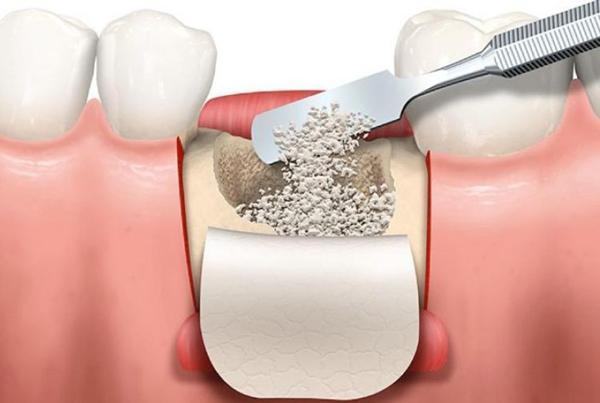 Ghép xương hàm có màng che phủ cố định