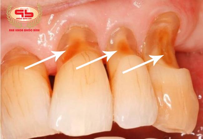 Gãy răng cửa do mòn cổ chân răng