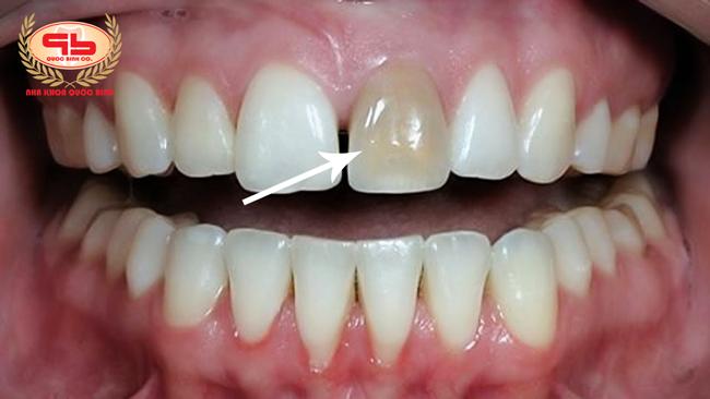 Gãy răng cửa do răng tổn thương tủy