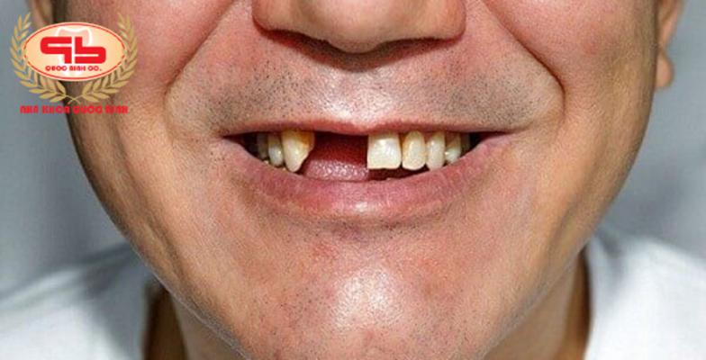 Gãy răng cửa phục hồi có dễ không?