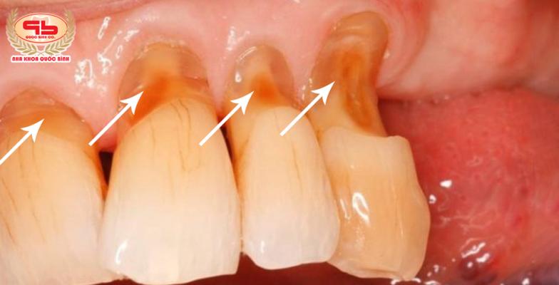 Mòn răng do đâu? Có phải do ăn nhai quá sức?