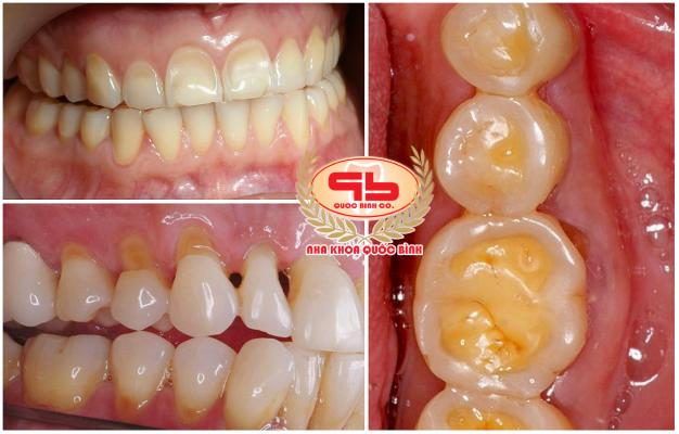 Mòn răng có rất nhiều nguyên nhân gây ra