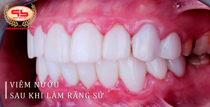 Một số cách điều trị hiệu quả tình trạng viêm nướu sau khi làm răng sứ
