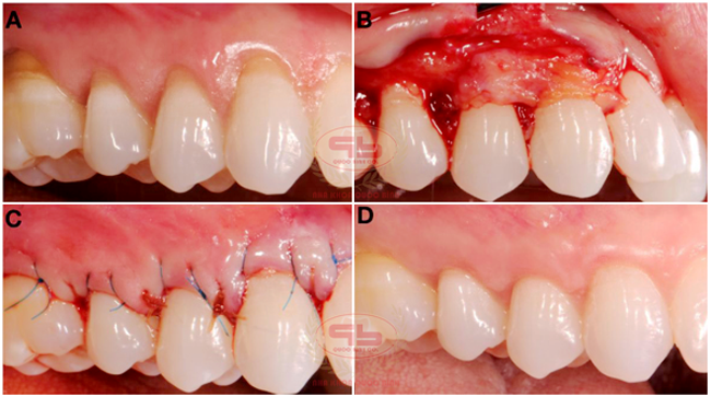 Ghép nướu răng bằng kỹ thuật đơn giản nhất