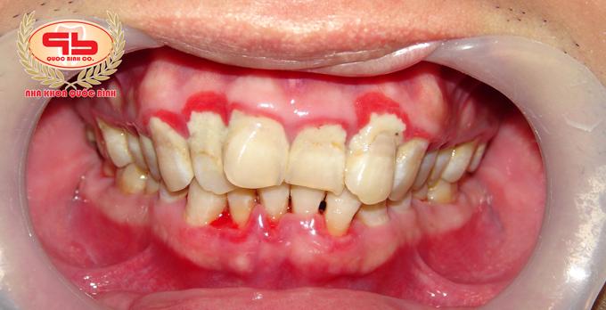 Loại bỏ vôi răng có gây ảnh hưởng xấu không, có nên thực hiện định kỳ?