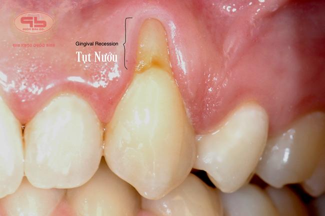 Tụt nướu cần điều trị ghép nướu răng
