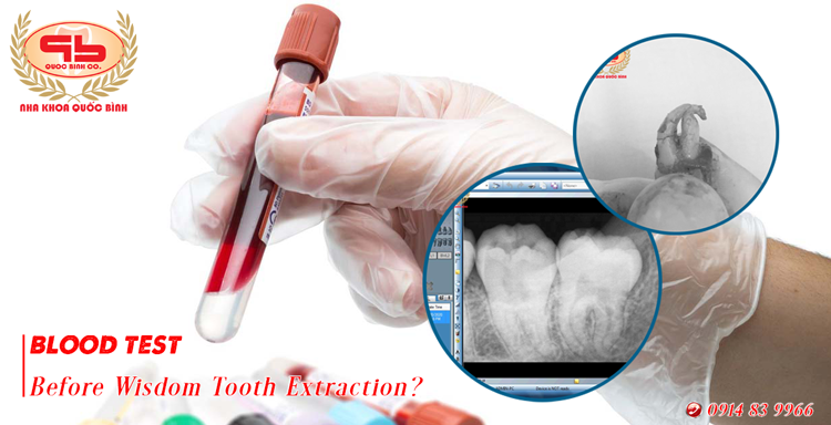 Is a blood test before wisdom tooth extraction necessary?
