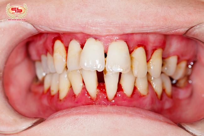 Đừng nhầm lẫn bệnh viêm nướu răng và viêm nha chu
