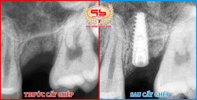 Trồng răng Implant sau khi nhổ răng vào thời điểm nào là tốt nhất?