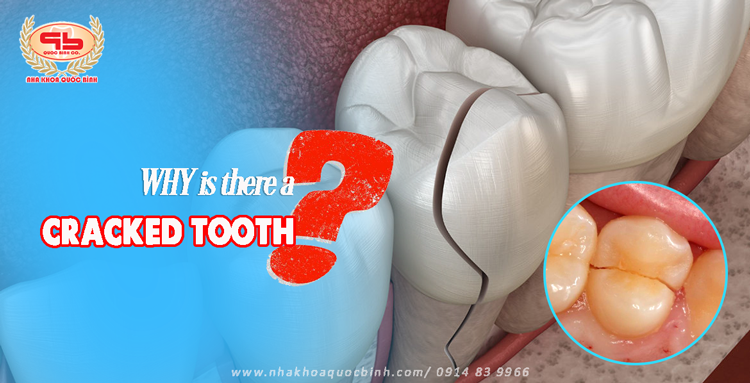 Why is there a cracked tooth?