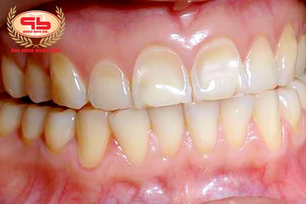 Xói mòn răng làm lộ lớp ngà răng vàng sẫm