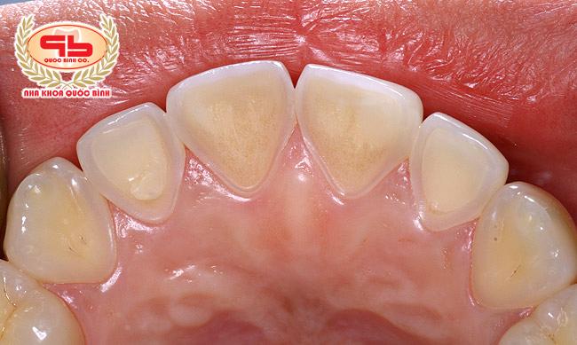 Xói mòn răng làm hao mòn lớp men răng